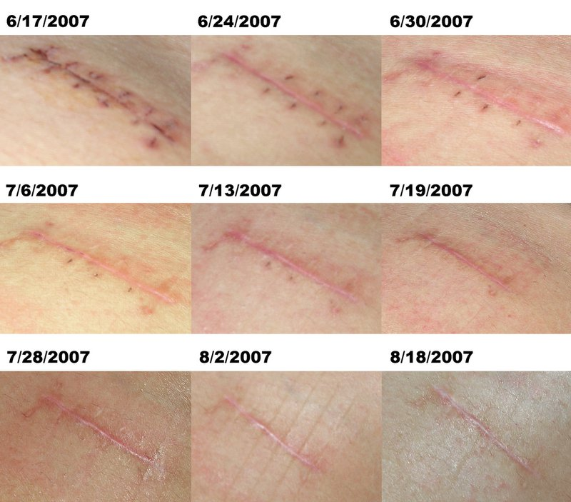 wound-progression