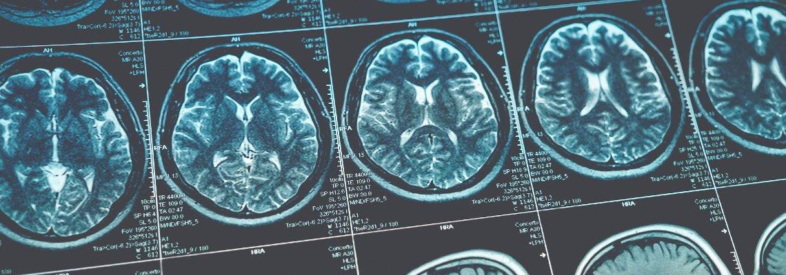 Brain scan sheet