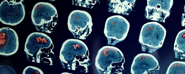 practice_areas_0002_brain_injury.jpg