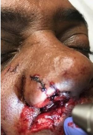 face bite