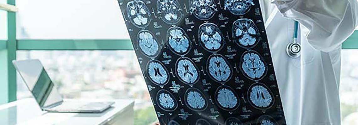 Doctor holding brain scan