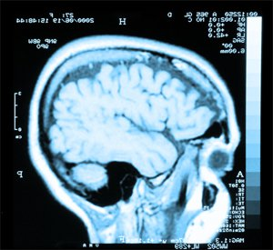 clearlake brain injury